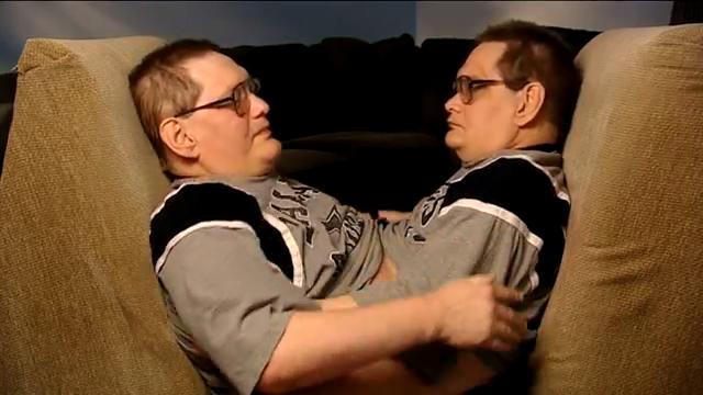 가장 오래 산 샴 쌍둥이