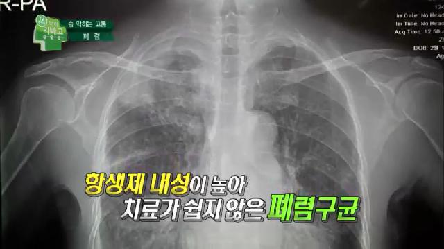 폐렴, 항셍제 치료 vs 자연 치유?