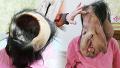 신경섬유종을 앓는 33세 여인의 안타까운 사연 [세상에이런일이] 907회 20161020