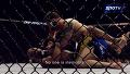 [UFC독점영상]앤더슨 실바의 재활 1년