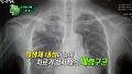 폐렴에 걸리면 무조건 항생제로?
