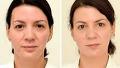 4주 동안 3L 물 섭취 얼굴 변화