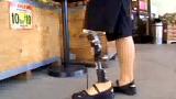 [무릎: 대퇴, 슬관절] 토탈 니(Total Knee)