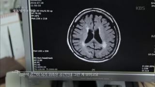 뇌질환의 위험요소는 외로움에 있다? [생로병사의비밀] 601회 20161123