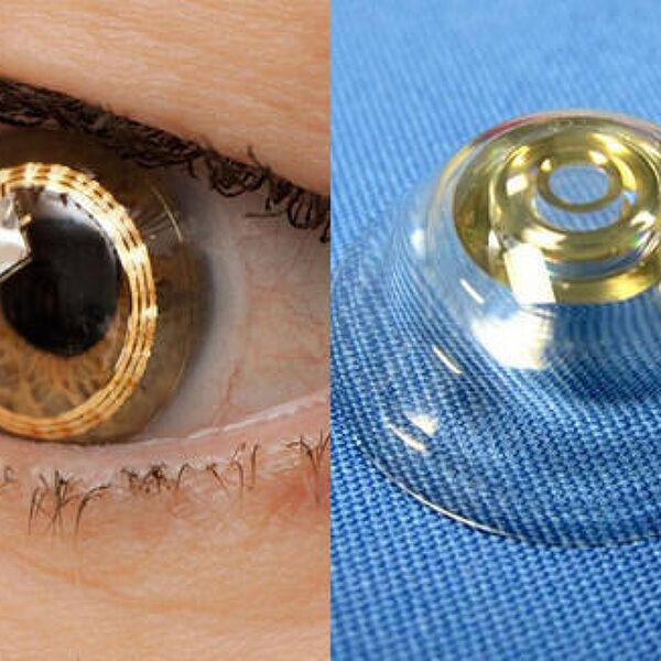 [스위스] 약 3배의 시력을 얻을 수 있는 망원 렌즈를 개발중