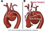 대동맥수술 가이드 - 대동맥 질환의 스텐트 ( Stent graft ) 삽입술 ( TEVAR ) - Hybrid TEVAR (4) 대동맥궁, Debranching and Bypass