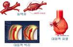 대동맥수술 가이드 - 대동맥 질환의 스텐트 ( Stent graft ) 삽입술  ( EVAR, TEVAR ) (1) 기본 개념