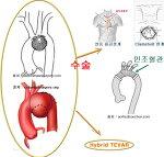 대동맥수술 가이드 - 대동맥 질환의 스텐트 ( Stent graft ) 삽입술 ( TEVAR ) - Hybrid TEVAR (2) 대동맥 수술의 소개