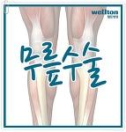 무릎수술 성공은 정확성과 의사실력이 중요!