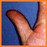손에 붉은 발진이?, 입으로도 감염이 되는 매독은 30%의 확률?(성병, 매독, 증상, 원인, 치료방법)