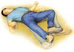 외상성 뇌손상 합병증은 어떻게?