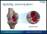 뼈-인대 보존하는 무릎 인공관절수술 병원은 어디?