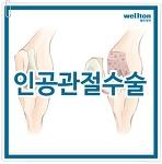 무릎인공관절수술 노년의 삶 편할 수 있도록!