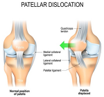 Rehabilitation following first-time patellar dislocation: a randomised controlled trial of purported vastus medialis obliquus muscle versus general quadriceps strengthening exercises