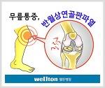 반월상연골판파열 파열 심하다면 무릎수술!