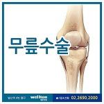 전방십자인대파열 무릎수술 방법은?