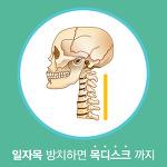 일자목 증후군, 목 디스크 예방법
