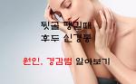 뒷골 땡길때 후두 신경통 원인 치료방법