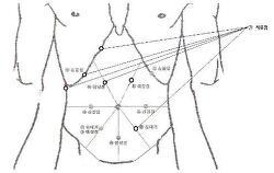 경락약침의 실제적용; 병원장 특강32(11.07.05).