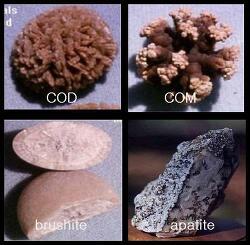 [청주비뇨기과/의학박사이승찬] 요로 즉 신장, 요관, 방광에 생기는 돌을 요로결석이라 한다.//요로결석의 개요