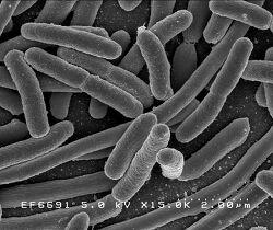 체중감량을 위해 장내 세균을 내편으로 만드는 법, 장속의 비만 세균 없애는 방법