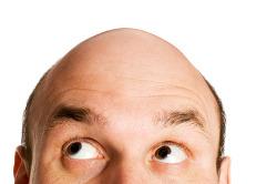 아직은 대머리가 될 수 없다! - 대머리와 탈모 예방 10가지 방법