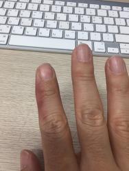 손가락 부상