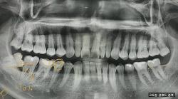 고독한 강월드 이빨 뽑고 때우고 씌우고 구강 치료하다