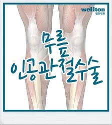 무릎인공관절수술 근육힘줄 보존 수술법 주목!