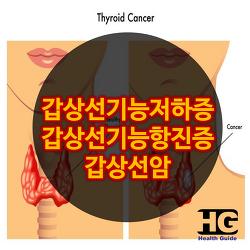 내분비 대사의 종류 증상 필요영양소-갑상선기능 저하증,갑상성기능 항진증, 갑상선암