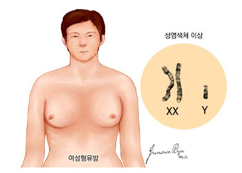 [한국의료재단] 남성 유방암