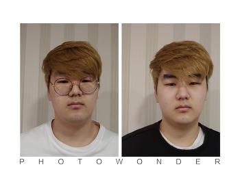 [동탄피부관리] 남자얼굴 축소경락  슬림하고 갸름하게~~