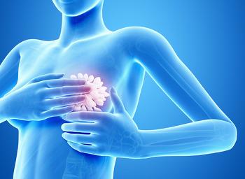 [가슴성형수술]유선염과 백주변염층