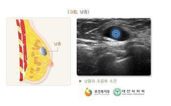 한국의료재단 유방 양성종양과 유방 검사