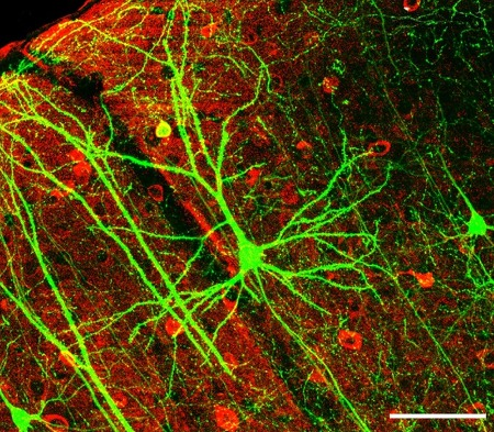 신경과학에 큰 발전과 큰 파문을 불러왔던 fMRI