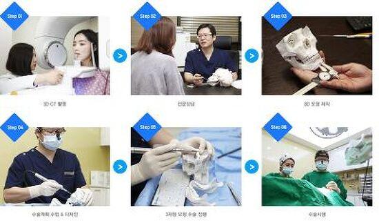 슬림하고 부드러운 인상을 위한 이미지업 안면윤곽수술