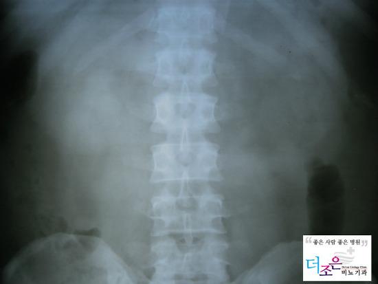 [청주비뇨기과/의학박사 이승찬] 엑스레이에 보이지 않는 결석