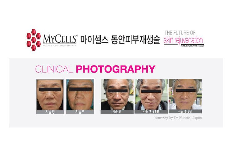 MYCELLS 동안 피부재생술