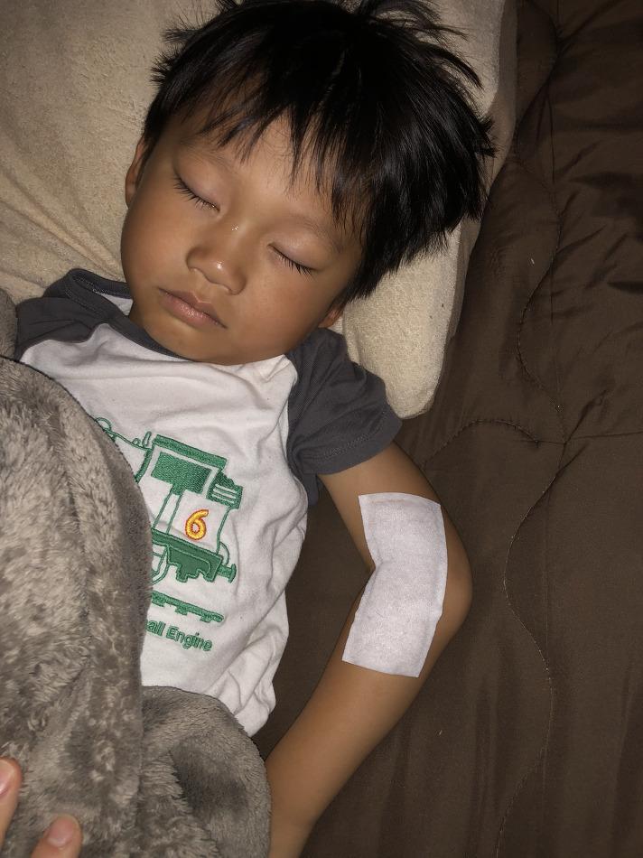 골절상 - 그네에서 떨어져 팔이 부러진 아이